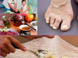 Народные рецепты лечения артрита