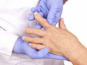 Осмотр пальцев руки врачом