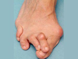 Искривленные пальцы на ногах