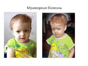 Мраморная болезнь у мальчика