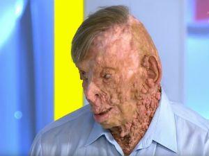 Человек с нейрофиброматозом