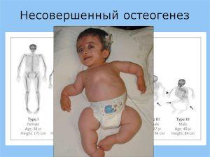 Младенец с кривыми костями