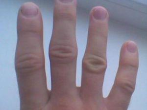Опухшие суставы пальцев