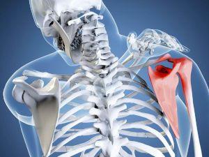 Воспаление в плече