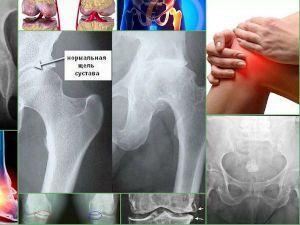 Рентген, остеосклероз кости
