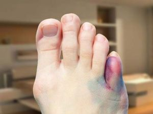 Синий мизинец на ноге