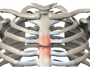 Перелом грудины