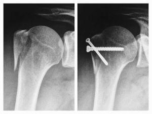 Рентген плечевой кости с шурупами