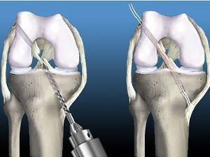 Восстановление связок сустава