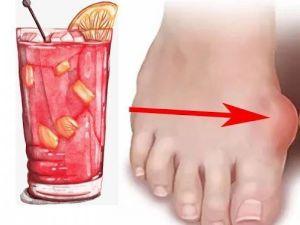 Алкоголь и шишка на ноге