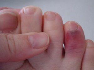 Синий палец на ноге