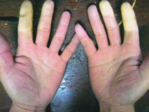 руки сине-белые