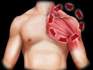 Воспаление мышц плеча