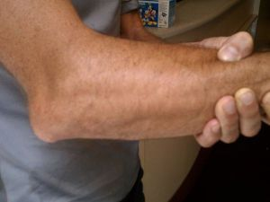Изображение - Упражнения для локтевого сустава после вывиха vyv-loktevogo