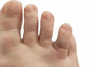кривой палец на ноге