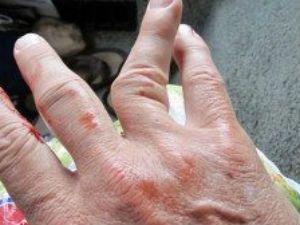 кривой палец