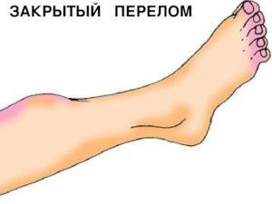 Нога с посиневшими участками