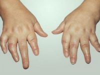 Артрит рук у ребенка