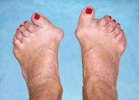 Что делать если болят ступни ног