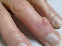 шишка на пальце