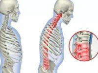 Лфк для спины и позвоночника
