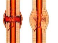 Костная мозоль после перелома: что это такое, причины образования, лечение и профилактика