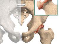 Разрушенный бедренный сустав