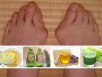 Косточки на ноге, мед, шишки, сельдерей