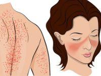 Сыпь на теле и лице