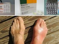 Лекарства при подагре