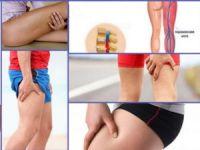 Онемение ноги от бедра