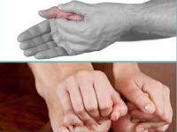 Немеют руки и ноги