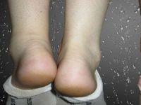 Одна нога короче другой
