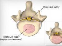 Отечность костного мозга