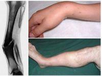 Кости после перелома