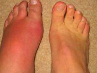 Ломит суставы рук и ног: причины появления неприятных симптомов