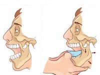 Вправление вывиха челюсти